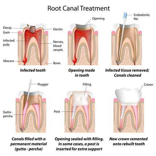 root canal illustrations